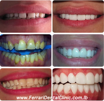 hollywood-smile-veneers