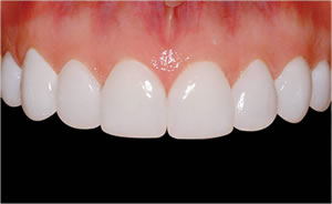 veneers in 1 session